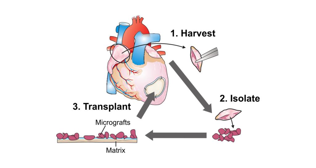Diagram of EpiHearts Cardiac Micrograft Therapy