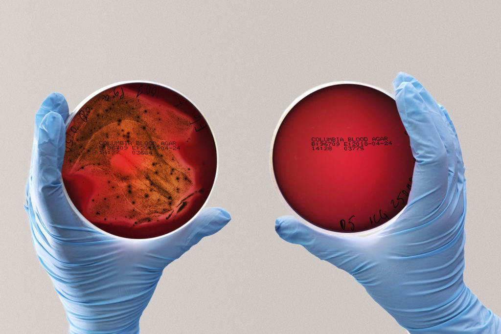 Porphyromonas Gingivalis plates, one with more bacteria and one with less